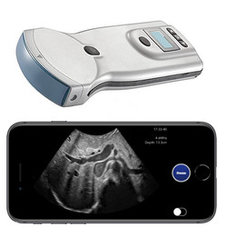 Pocket Ultrasound System PUSG-1000C