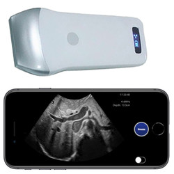 Pocket Ultrasound System PUSG-1000F